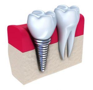 Close up photo of dental implants, available at Gustafson Morningstar Dentistry in Royal Oak.
